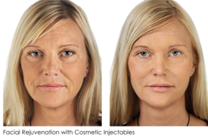 facial rejuvenation with cosmetic injectables