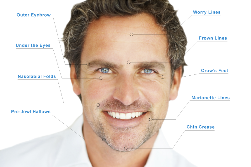 cosmetic injectables for men